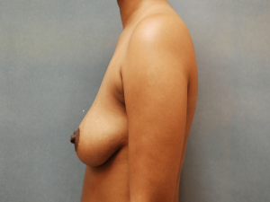 Manhattan Breast Augmentation Before 6